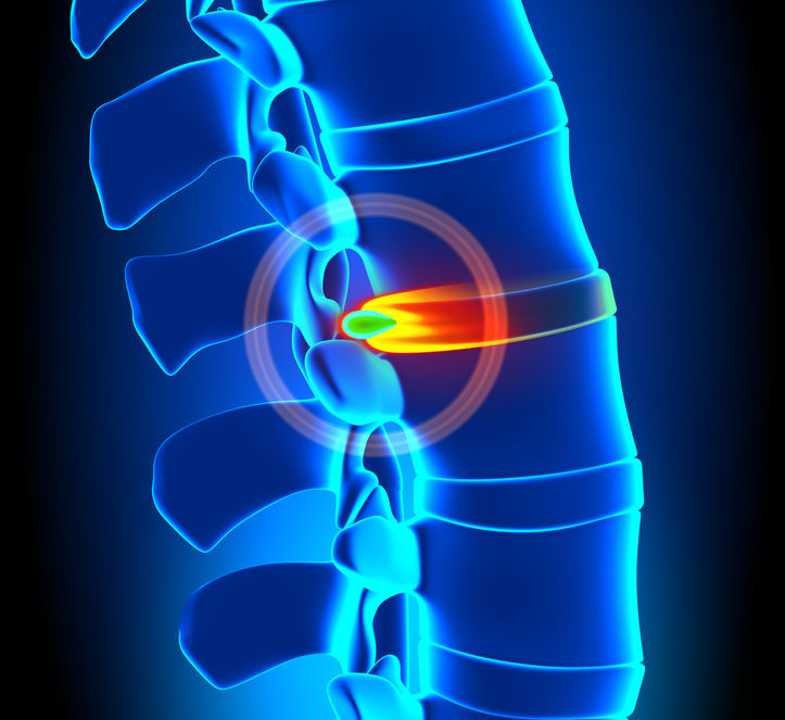 Treating Herniated Discs without Surgery